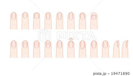 手の爪の形とトラブルのイラスト素材 19471890 Pixta