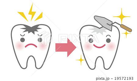 虫歯治療のビフォーアフターイメージ(キャラクター)