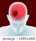 脳梗塞 脳内出血 頭痛のイラスト 19901460