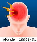 脳梗塞 脳内出血 頭痛のイラスト 19901461