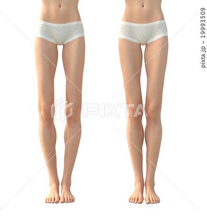 O脚と理想的な女性の脚 ボディー...