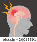 脳内出血 頭痛 脳のイラスト 20018591