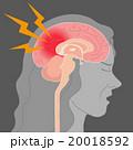脳内出血 頭痛 脳のイラスト 20018592