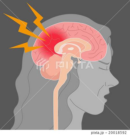 頭痛、脳梗塞、脳内出血 イメー...