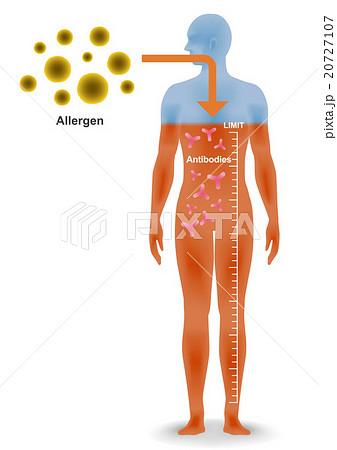 アレルギー発症のしくみ 20727107