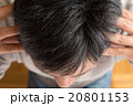 頭皮マッサージする男性 20801153