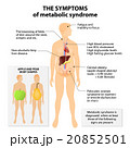 Metabolic syndrome 20852501