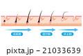 脱毛 毛周期 ヘアサイクル 21033639