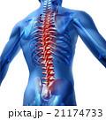 腰痛 身体検査 苦しみのイラスト 21174733