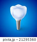 デンタル 歯科 入れ歯のイラスト 21295360
