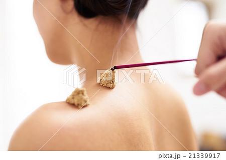 お灸をする女性 21339917