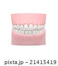 歯のモデル, 歯科模型 21415419