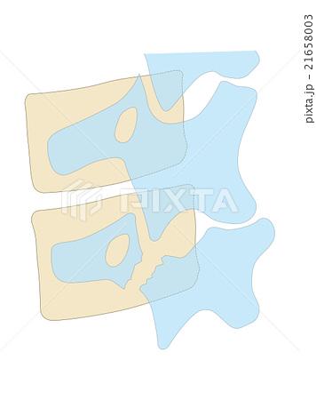 腰椎分離症 テリアの首輪 分離した腰椎 21658003