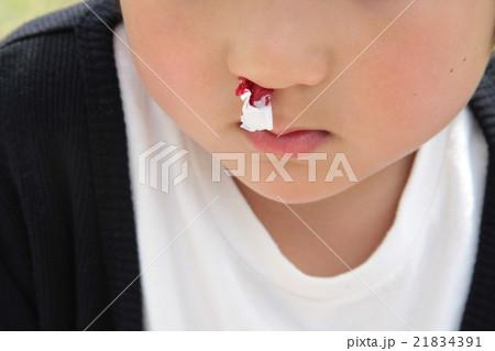 鼻血が出た幼児 21834391