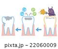 虫歯の流れ 22060009
