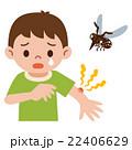 蚊に刺された男の子 22406629