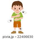 蚊に刺された男の子 22406630