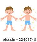 皮膚炎の男の子 22406748