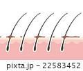 毛 地肌 断面図のイラスト 22583452