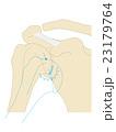 肩の代表的なスポーツ外傷・傷害 肩関節脱臼 23179764
