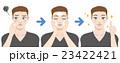 ニキビケア スキンケア ステップのイラスト 23422421