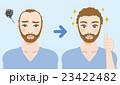 男性 薄毛 育毛のイラスト 23422482