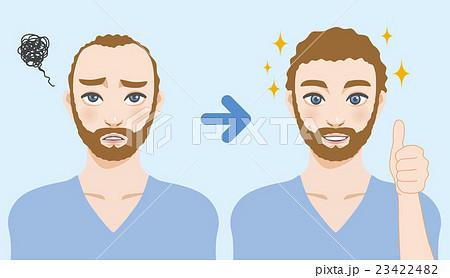 男性の薄毛治療 23422482