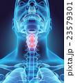 3D illustration of Epiglottis, medical concept. 23579301