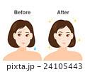 女性 悩み シワ たるみ イラスト before after  24105443