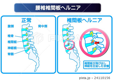 腰椎椎間板ヘルニア 24110156