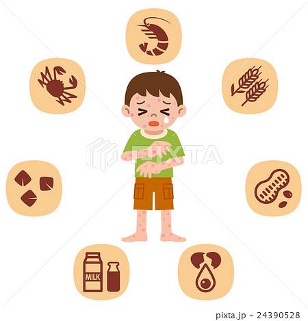 アレルギー 子供 24390528