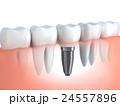 歯 インプラント 立体のイラスト 24557896