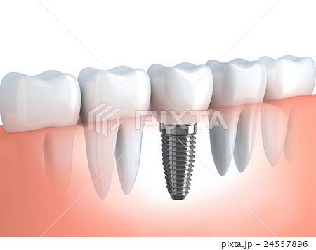 Dental implant 24557896