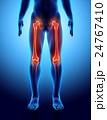 大腿骨 骨 人体のイラスト 24767410