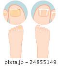 ネイル 足指 メディカルのイラスト 24855149