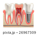 Dental Implants Anatomy Closeup Model  26967309