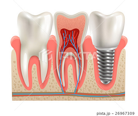 Dental Implants Anatomy Closeup Model のイラスト素材 [26967309] - PIXTA