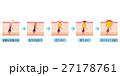 毛穴 ニキビの進行 断面図のイラスト 27178761