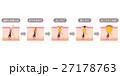 毛穴 ニキビの進行 断面図のイラスト 27178763
