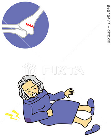 おばあさん骨折 27905049