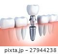 歯 インプラント デンタルのイラスト 27944238