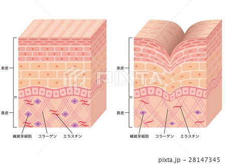 しわ 皮膚の構造 断面図 28147345