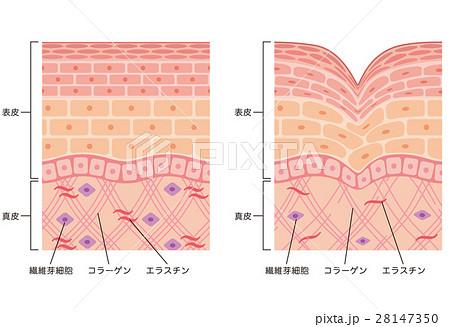 しわ 皮膚の構造 断面図 28147350