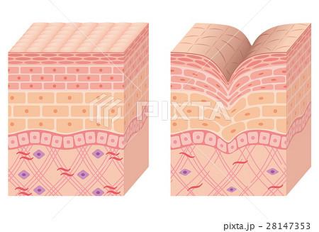 しわ 皮膚の構造 断面図 28147353