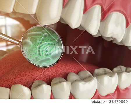 Bacterias and viruses around tooth. Dental hygiene 28479849