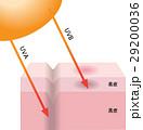 紫外線 ダメージ 肌のイラスト 29200036