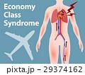 エコノミークラス症候群 29374162