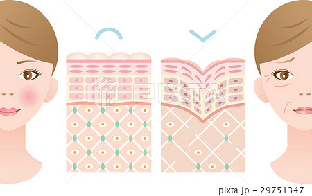 若い肌 しわ肌 断面図のイラスト素材 29751347 Pixta