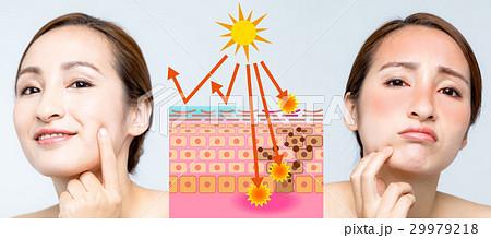 女性の日焼けビフォーアフター 29979218
