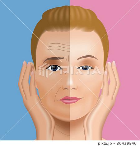 顔のシワ治療 ビフォーアフター 30439846